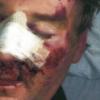 Media Mistake: Brian Mulligan on Bath Salts – A Story Mistold
